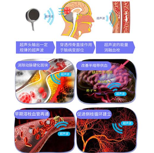 经颅超声电疗仪厂家