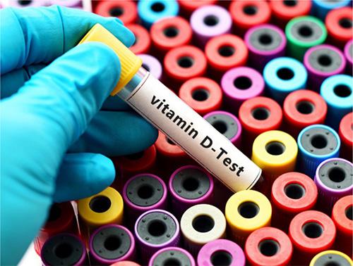 25-羥基維生素D診斷試劑盒