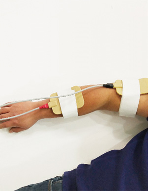 肢体神经肌肉电刺激(NMES)-辅极电疗
