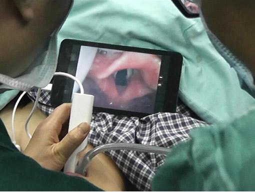 一次性可视喉镜