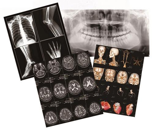 醫用干式激光(超聲)膠片